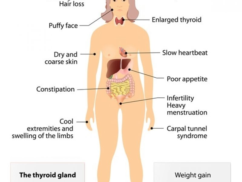 Thyroid Symptoms